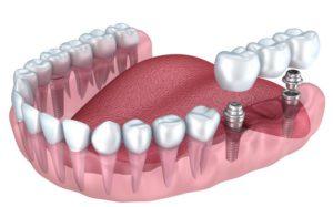 Имплантация зубов Бровары
