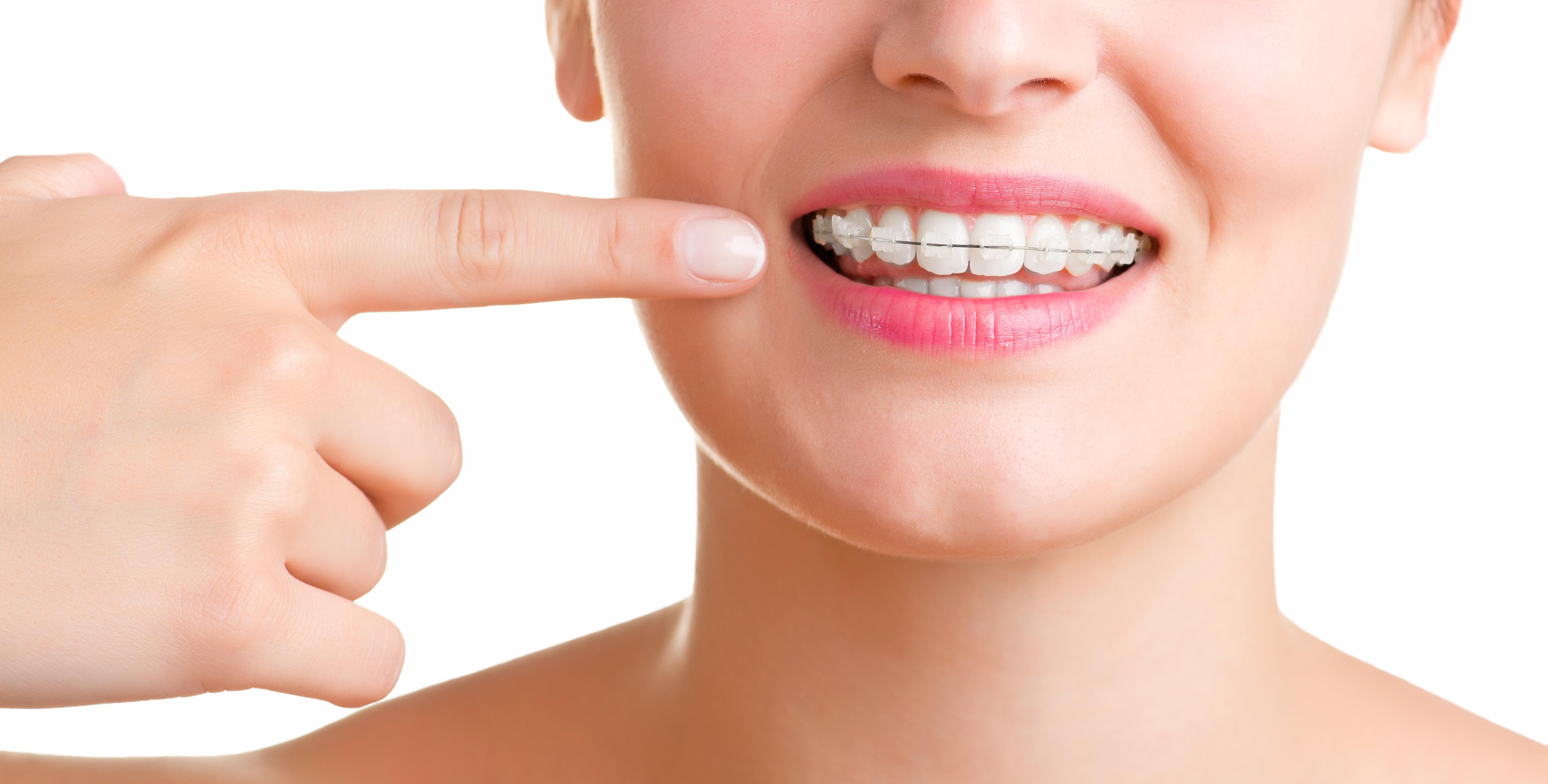 Исправление прикуса, выравнивание зубов. Стоматология